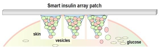 smart_insulin_patch.jpg