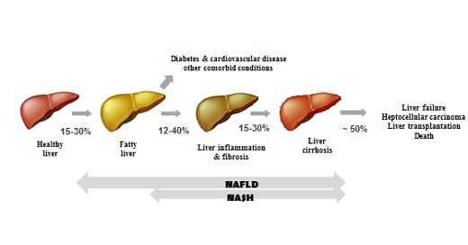 Non-invasive liver fat and liver stiffness screening at Profil